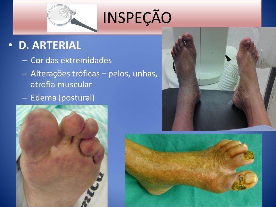 INSPEÇÃO D. ARTERIAL Cor das extremidades
