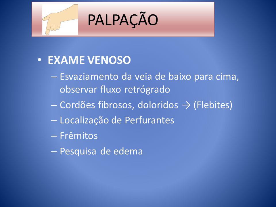 PALPAÇÃO EXAME VENOSO. Esvaziamento da veia de baixo para cima, observar fluxo retrógrado. Cordões fibrosos, doloridos → (Flebites)