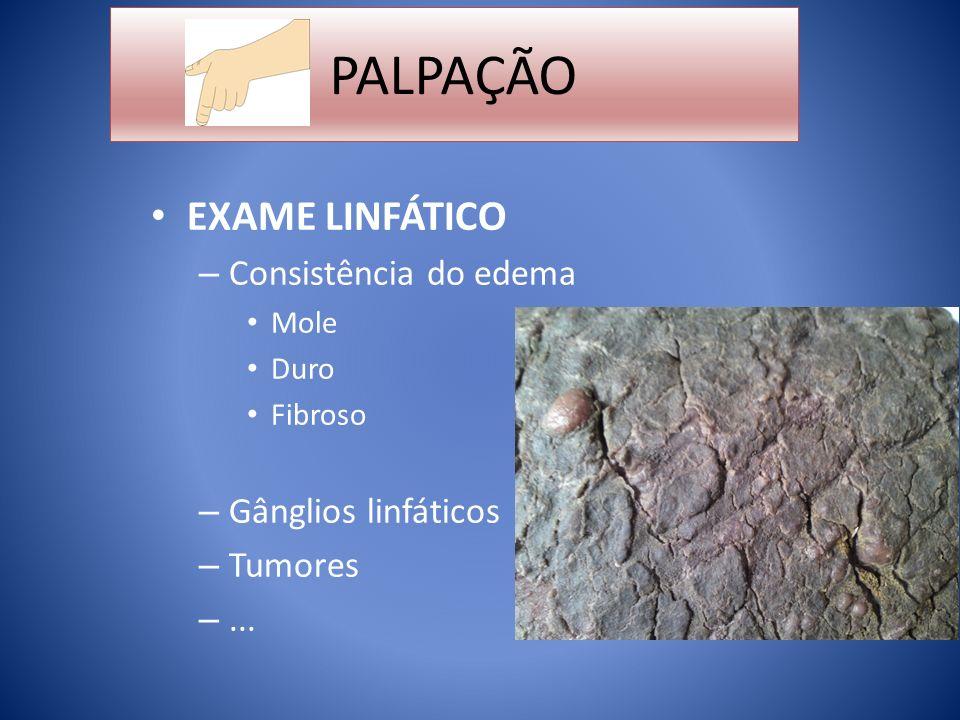 PALPAÇÃO EXAME LINFÁTICO Consistência do edema Gânglios linfáticos