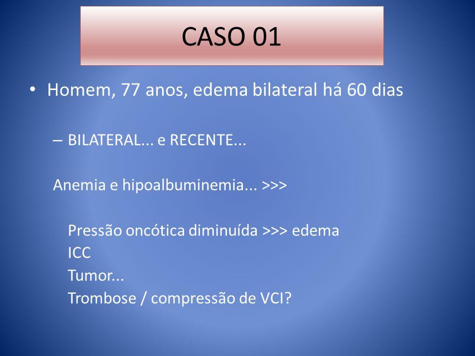 CASO 01 Homem, 77 anos, edema bilateral há 60 dias
