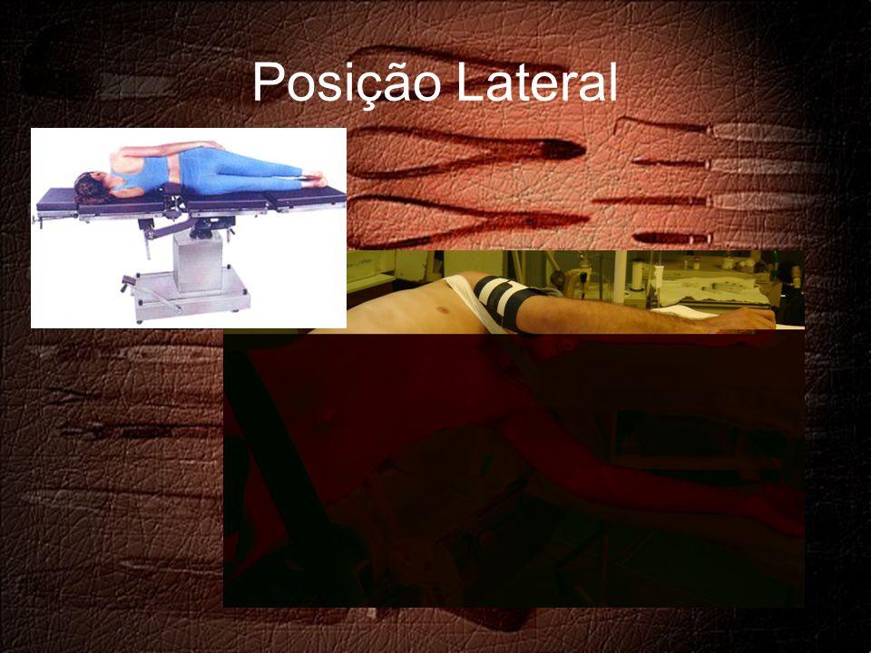 Posição Lateral