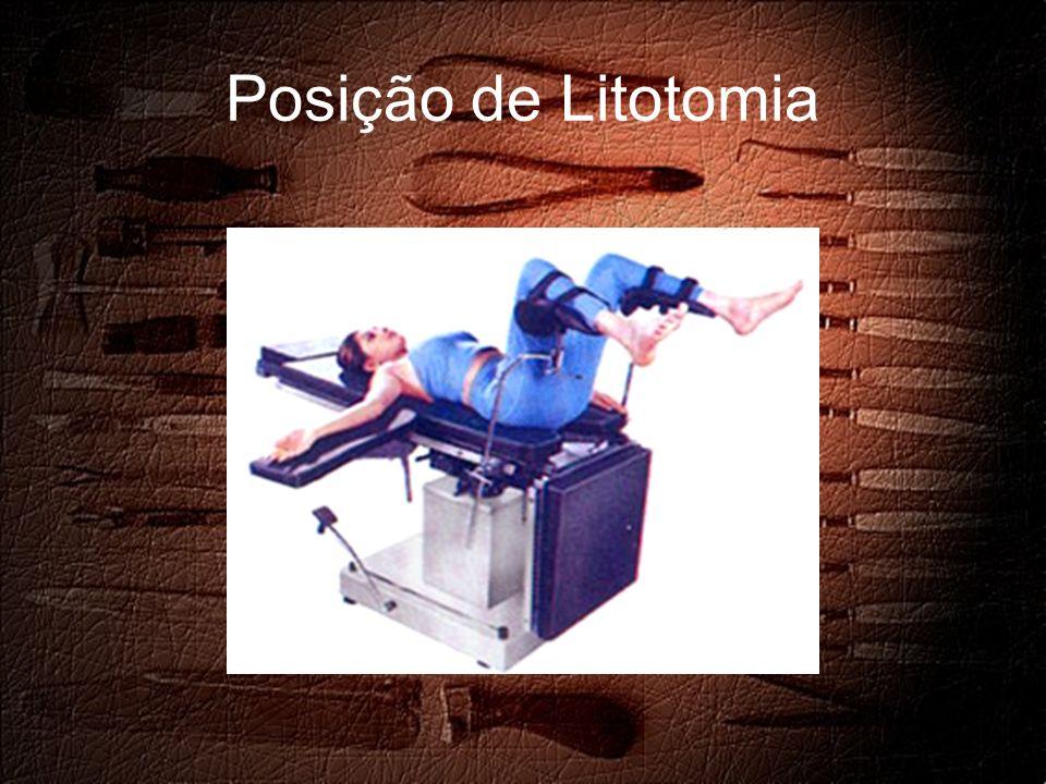 Posição de Litotomia