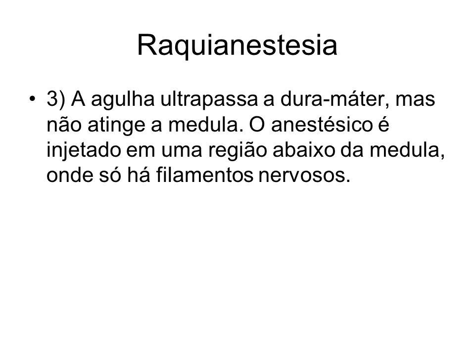 Raquianestesia