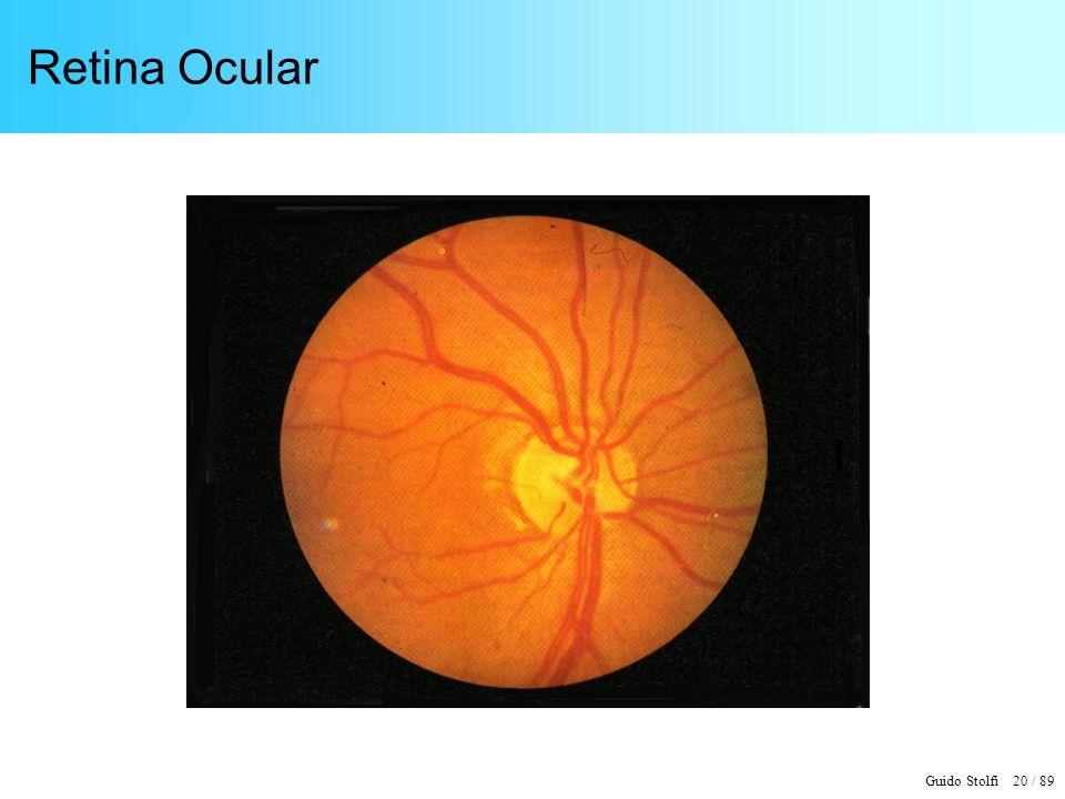 Retina Ocular