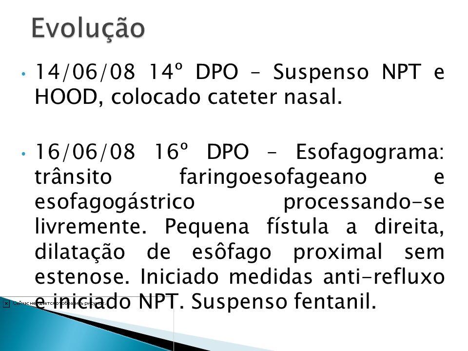 Evolução 14/06/08 14º DPO – Suspenso NPT e HOOD, colocado cateter nasal.