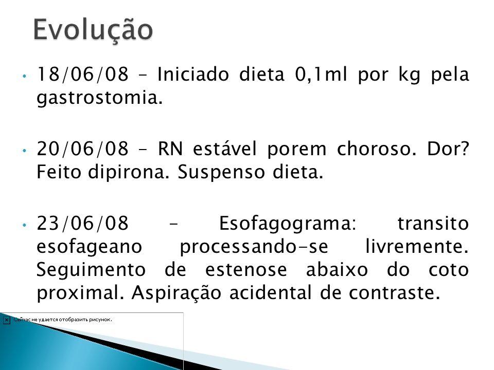 Evolução 18/06/08 – Iniciado dieta 0,1ml por kg pela gastrostomia.