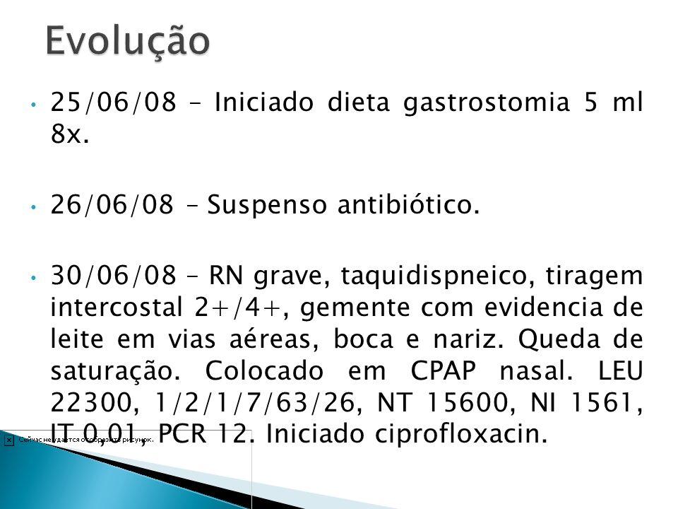 Evolução 25/06/08 – Iniciado dieta gastrostomia 5 ml 8x.