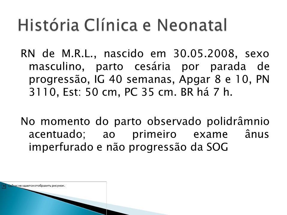 RN de M.R.L., nascido em 30.05.2008, sexo masculino, parto cesária por parada de progressão, IG 40 semanas, Apgar 8 e 10, PN 3110, Est: 50 cm, PC 35 cm.