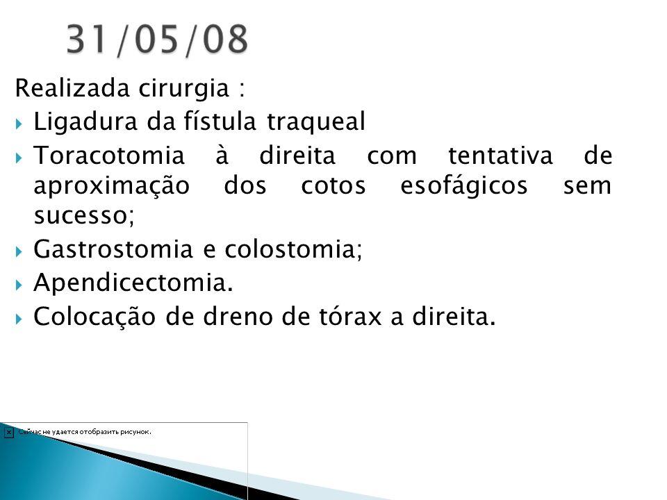 Realizada cirurgia : Ligadura da fístula traqueal. Toracotomia à direita com tentativa de aproximação dos cotos esofágicos sem sucesso;