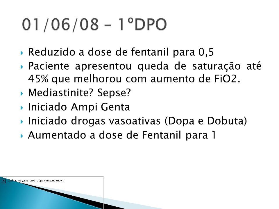 Reduzido a dose de fentanil para 0,5