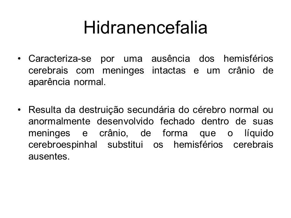 Hidranencefalia Caracteriza-se por uma ausência dos hemisférios cerebrais com meninges intactas e um crânio de aparência normal.
