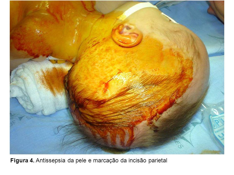 Figura 4. Antissepsia da pele e marcação da incisão parietal