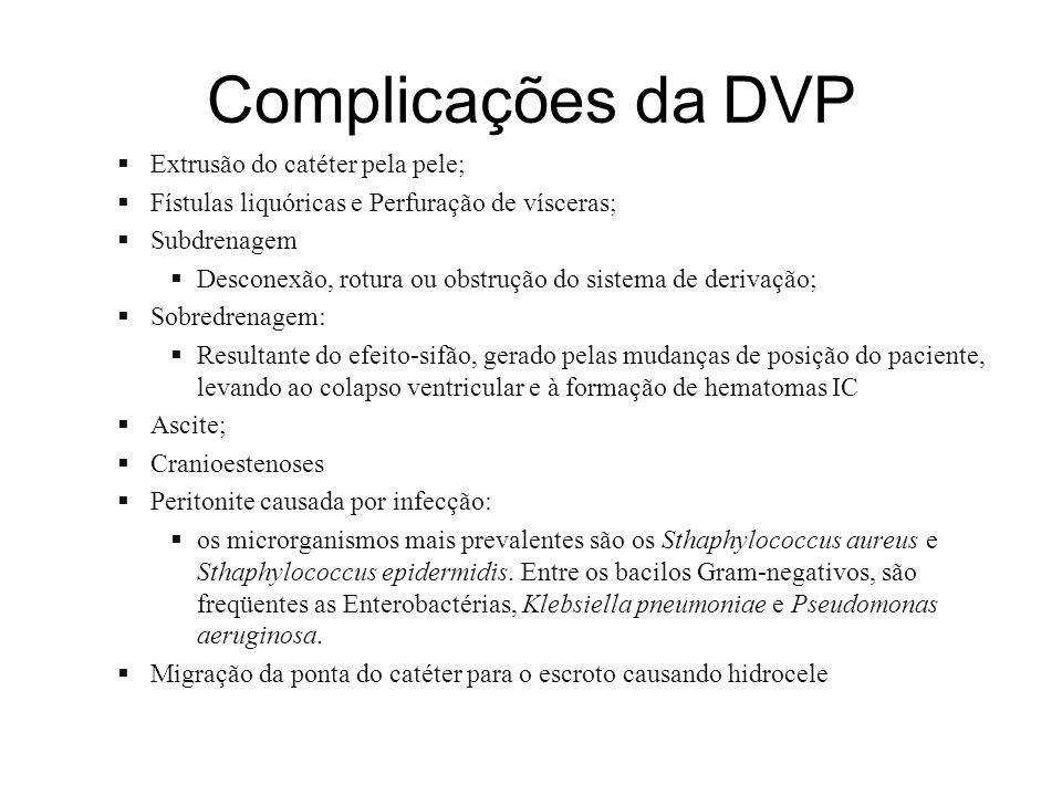 Complicações da DVP Extrusão do catéter pela pele;