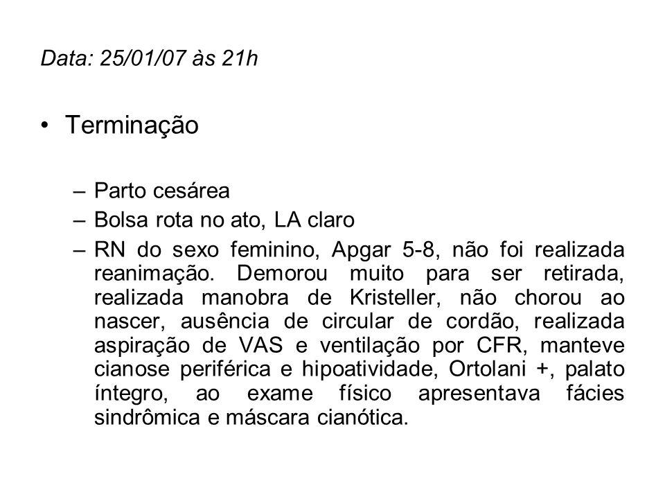Terminação Data: 25/01/07 às 21h Parto cesárea