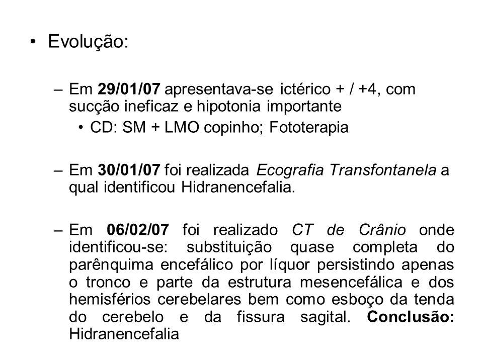 Evolução: Em 29/01/07 apresentava-se ictérico + / +4, com sucção ineficaz e hipotonia importante. CD: SM + LMO copinho; Fototerapia.