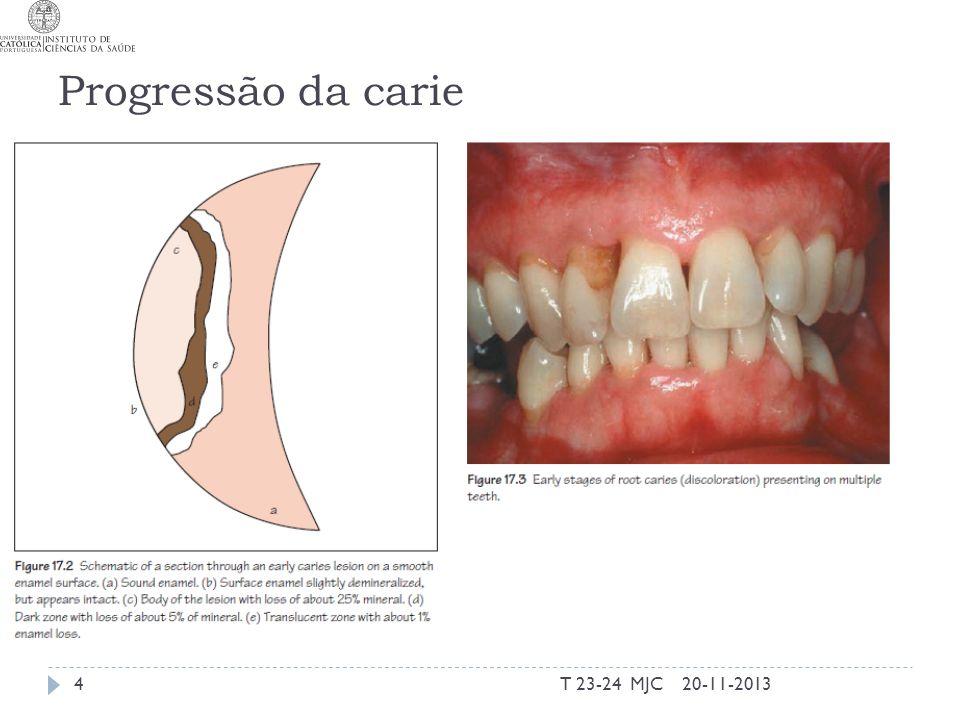 Progressão da carie T 23-24 MJC 20-11-2013