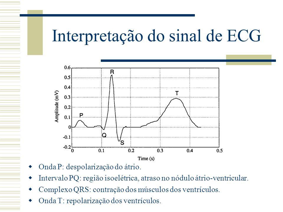 Interpretação do sinal de ECG