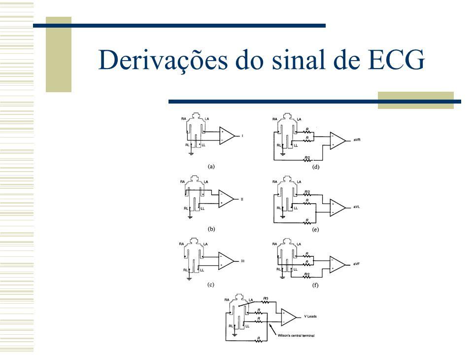 Derivações do sinal de ECG