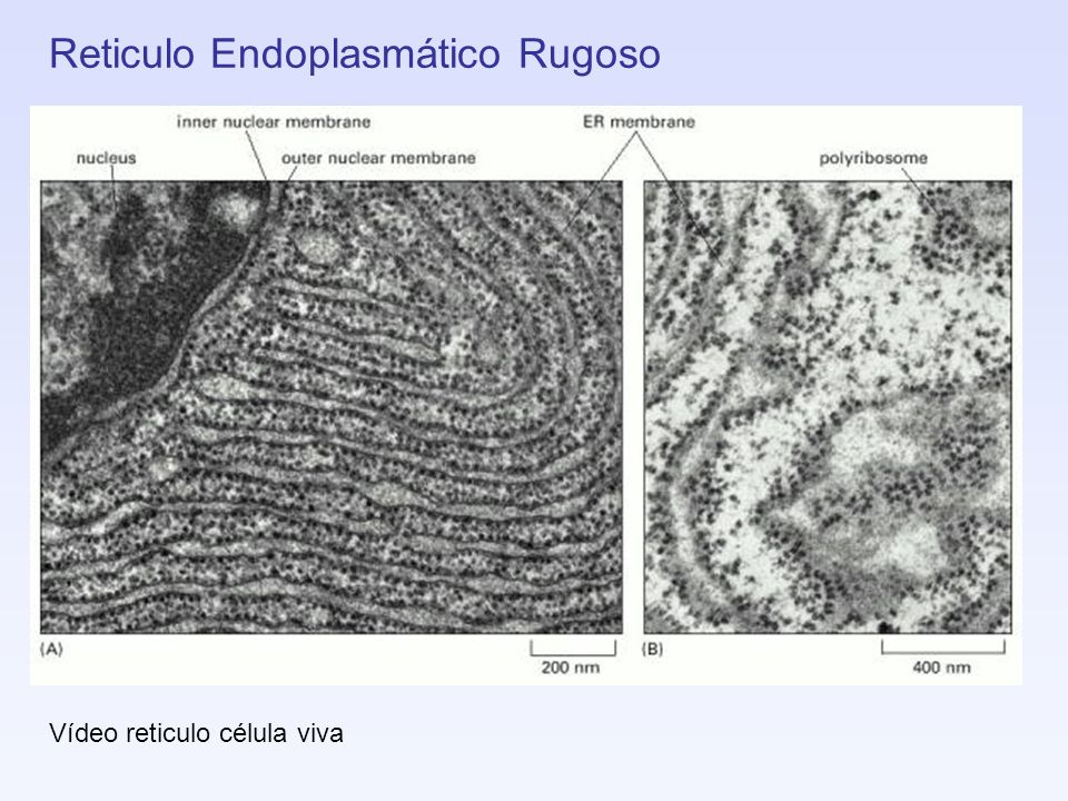 Reticulo Endoplasmático Rugoso