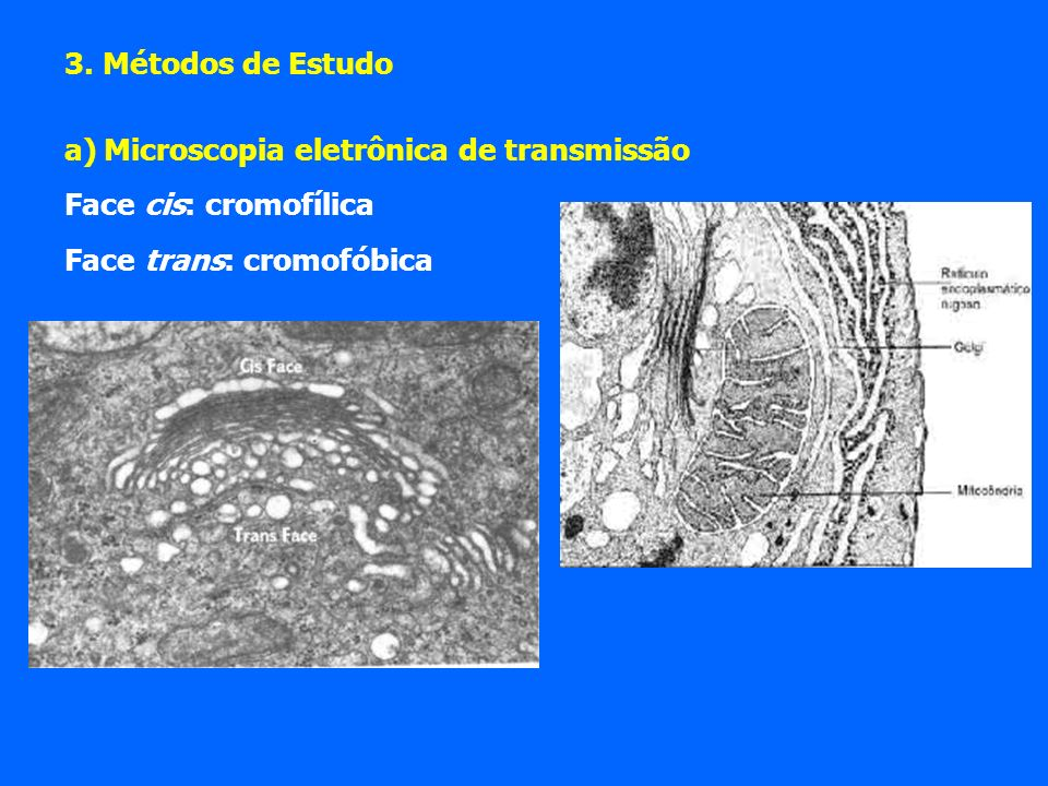 3. Métodos de Estudo Microscopia eletrônica de transmissão.