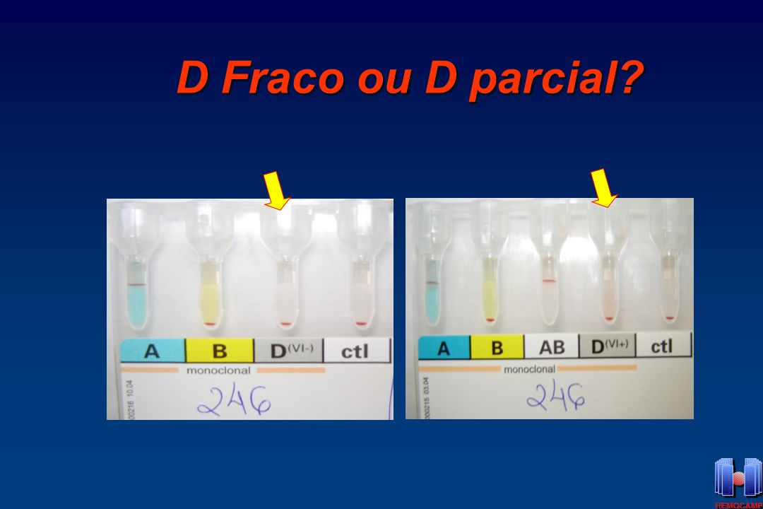 D Fraco ou D parcial