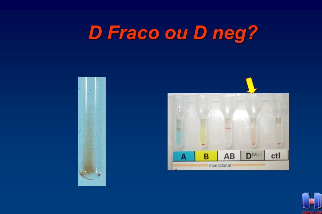 D Fraco ou D neg