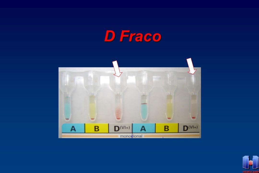 D Fraco