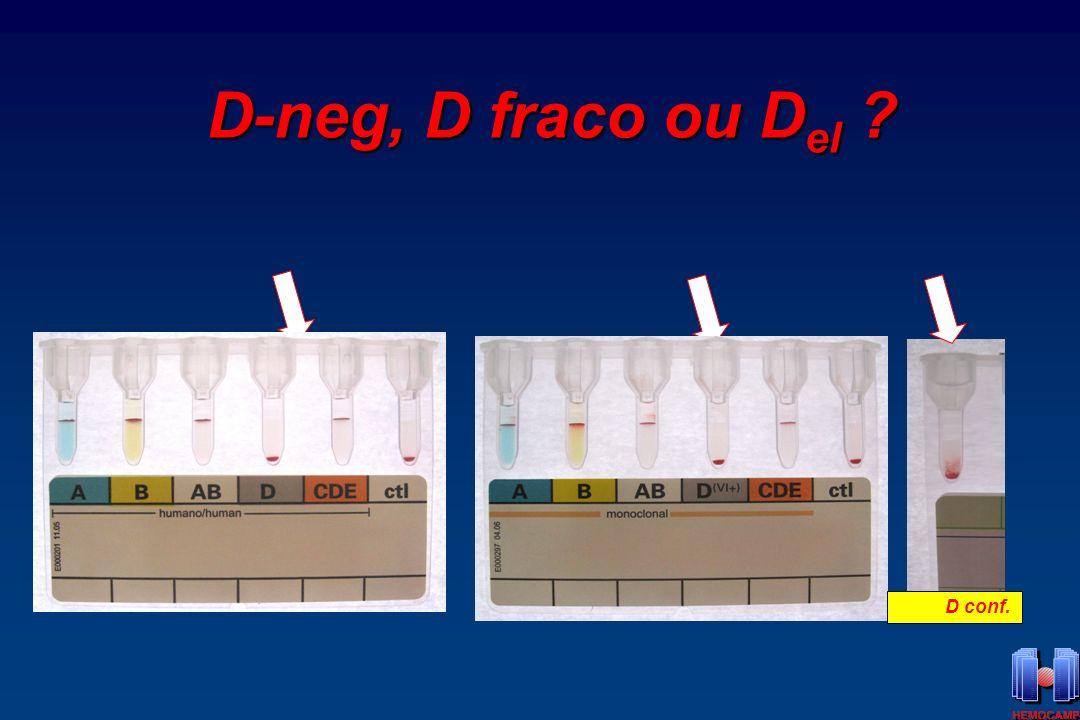 D-neg, D fraco ou Del – D conf.