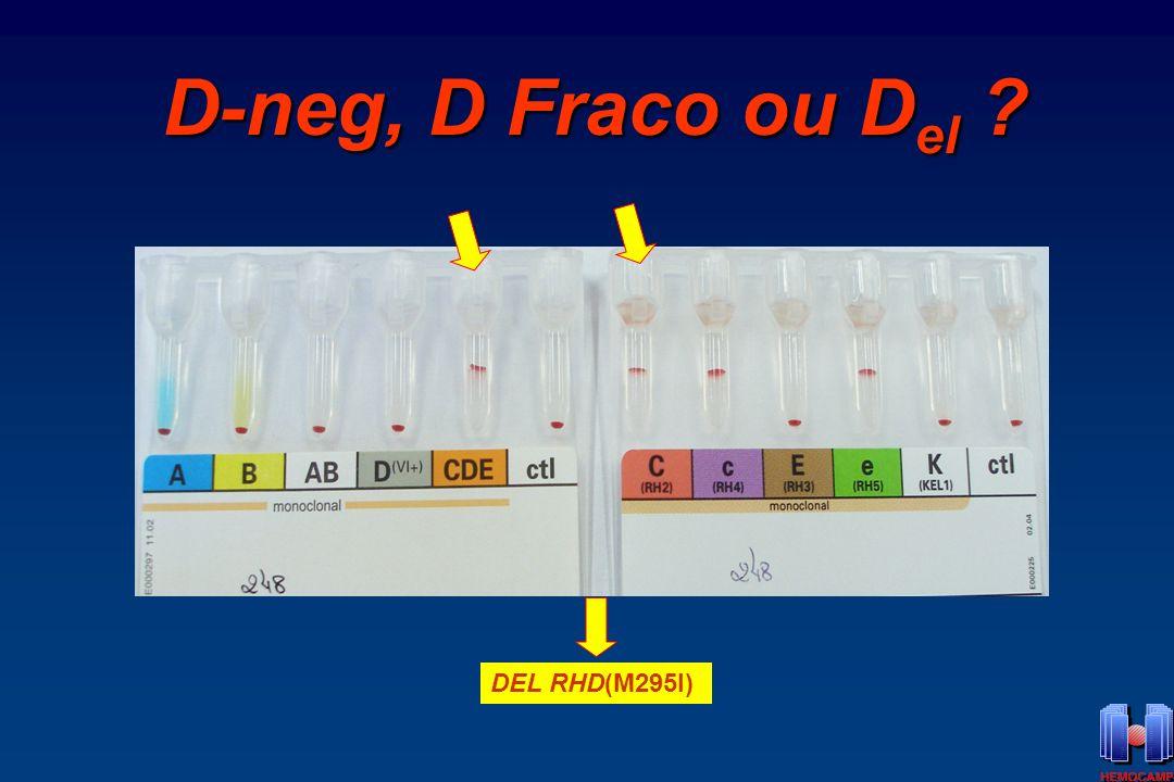 D-neg, D Fraco ou Del DEL RHD(M295I)
