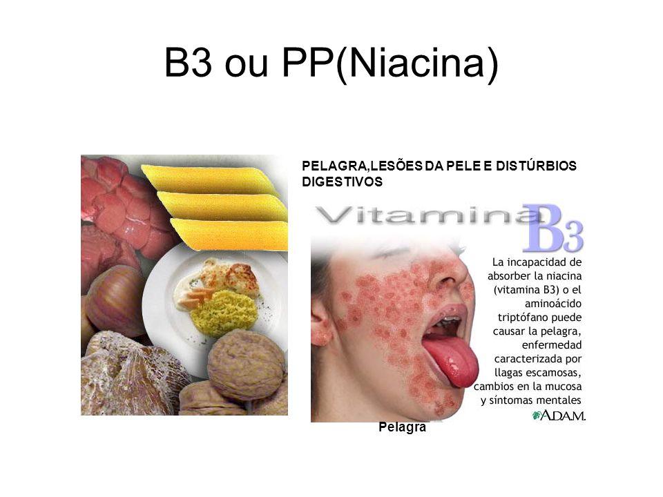 B3 ou PP(Niacina) PELAGRA,LESÕES DA PELE E DISTÚRBIOS DIGESTIVOS