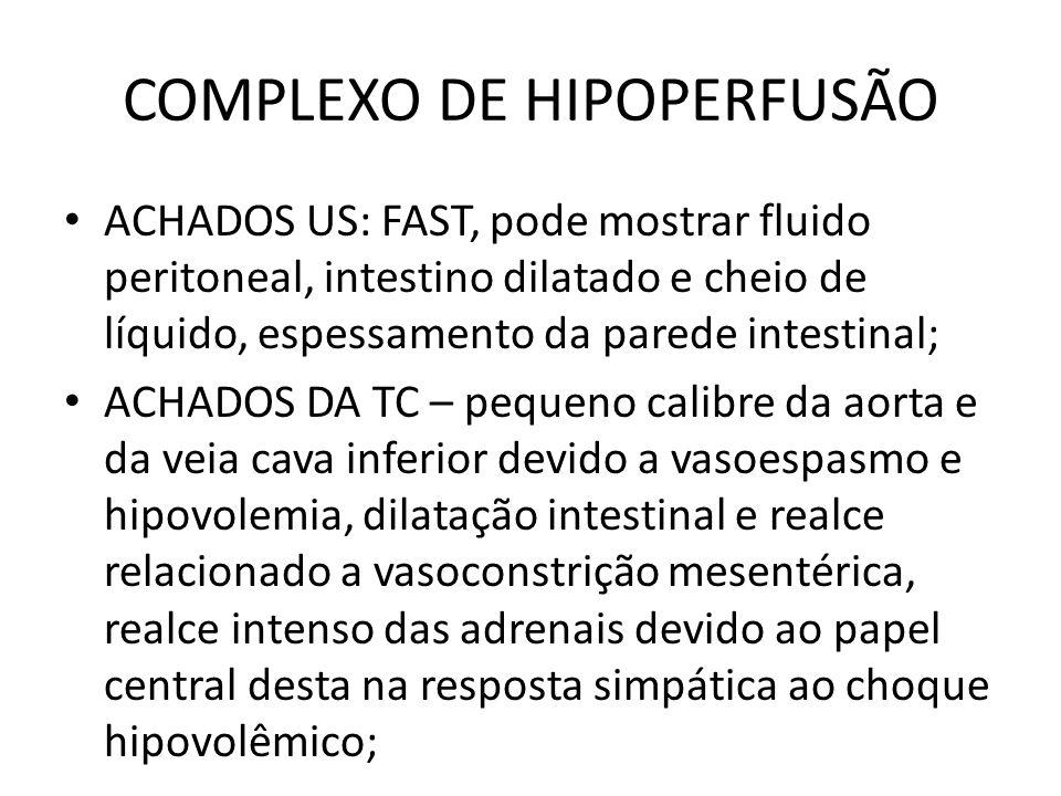 COMPLEXO DE HIPOPERFUSÃO