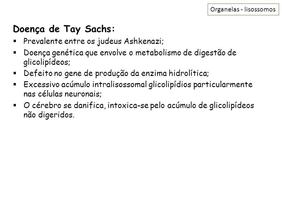 Doença de Tay Sachs: Prevalente entre os judeus Ashkenazi;