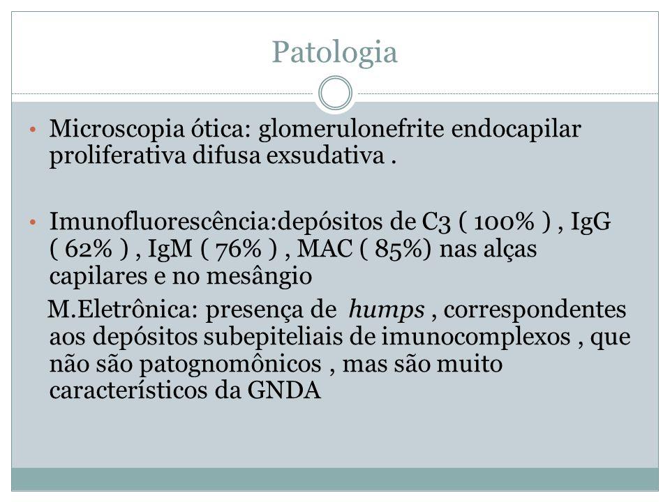 Patologia Microscopia ótica: glomerulonefrite endocapilar proliferativa difusa exsudativa .