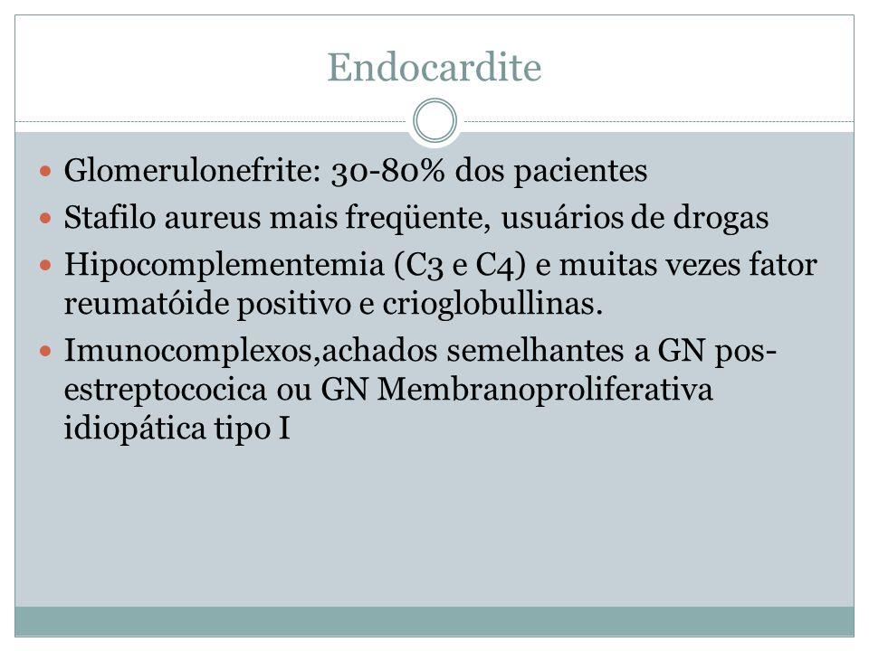 Endocardite Glomerulonefrite: 30-80% dos pacientes