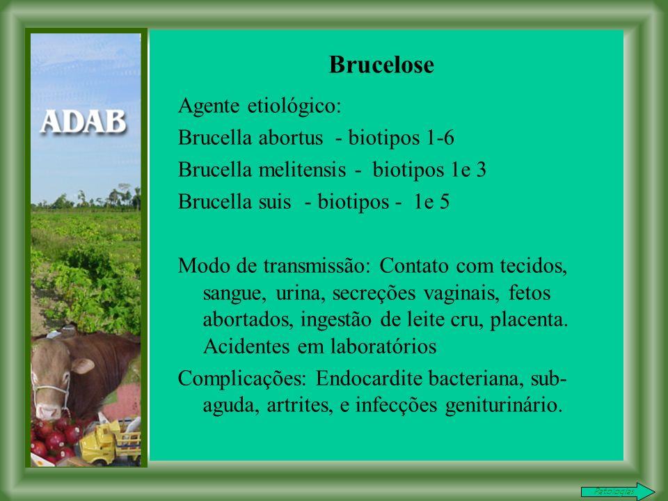 Brucelose Agente etiológico: Brucella abortus - biotipos 1-6