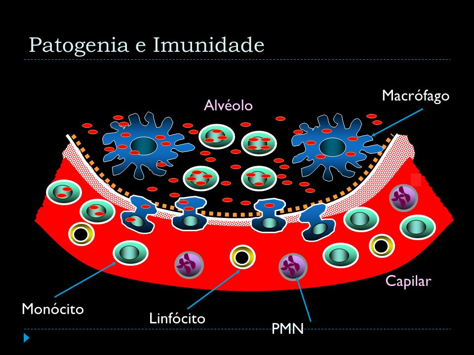 Patogenia e Imunidade Macrófago Alvéolo Capilar Monócito Linfócito PMN
