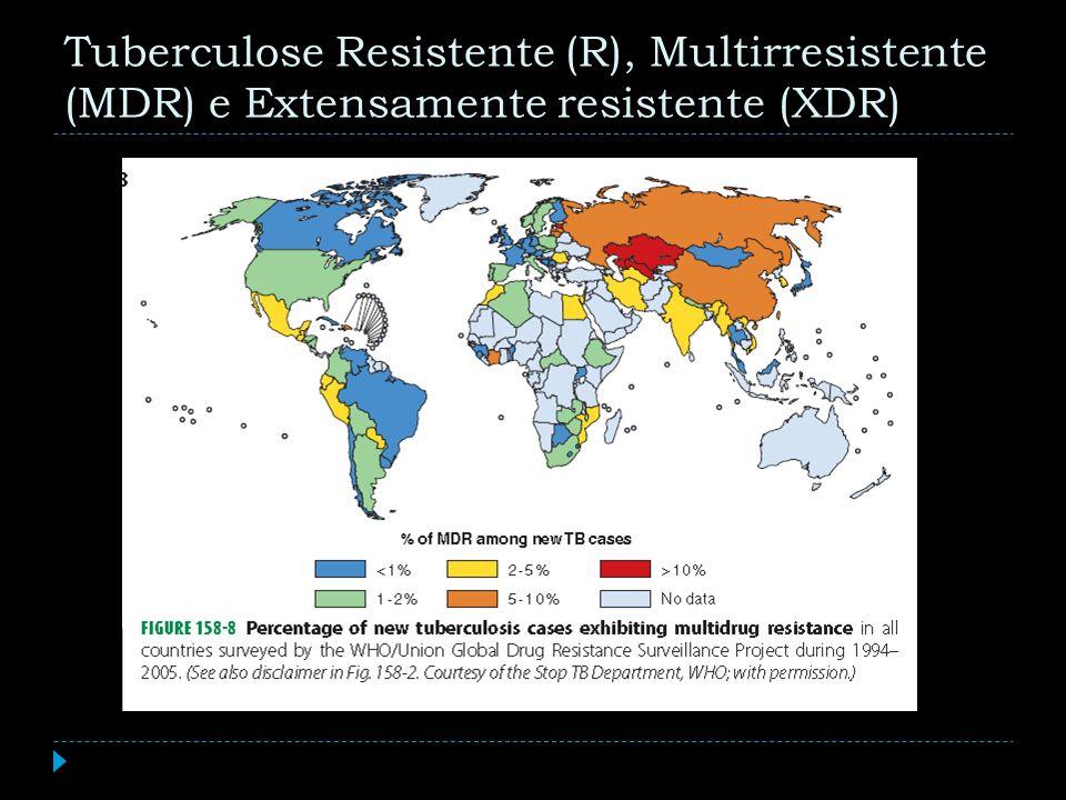 Tuberculose Resistente (R), Multirresistente (MDR) e Extensamente resistente (XDR)