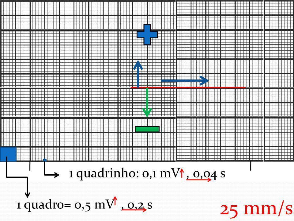 1 quadrinho: 0,1 mV , 0,04 s 1 quadro= 0,5 mV , 0,2 s 25 mm/s