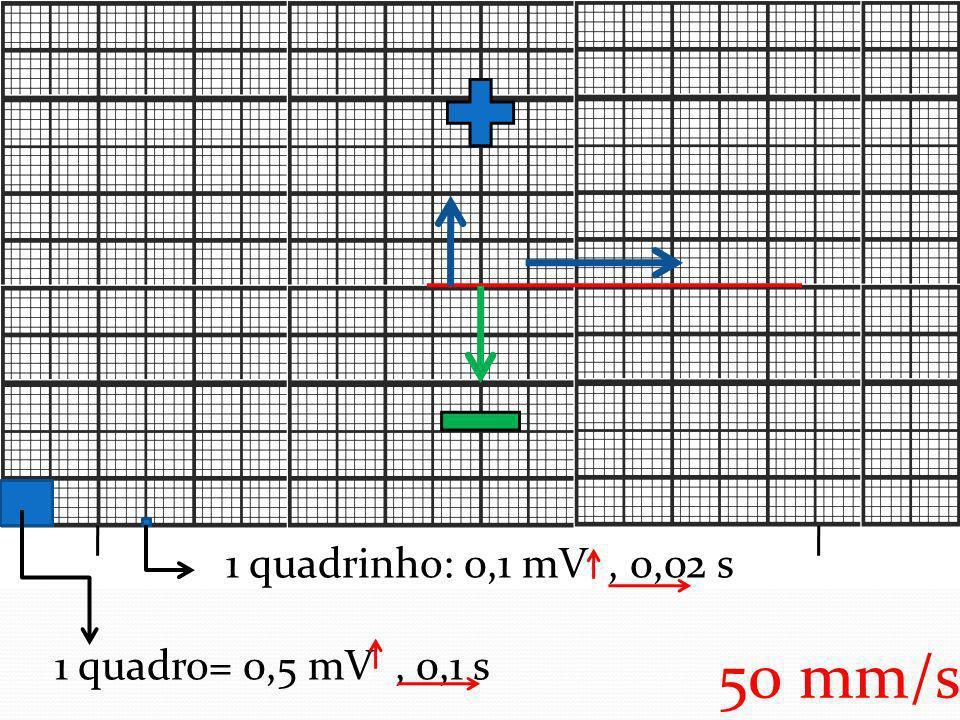 1 quadrinho: 0,1 mV , 0,02 s 1 quadro= 0,5 mV , 0,1 s 50 mm/s