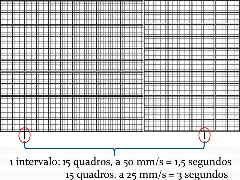 1 intervalo: 15 quadros, a 50 mm/s = 1,5 segundos