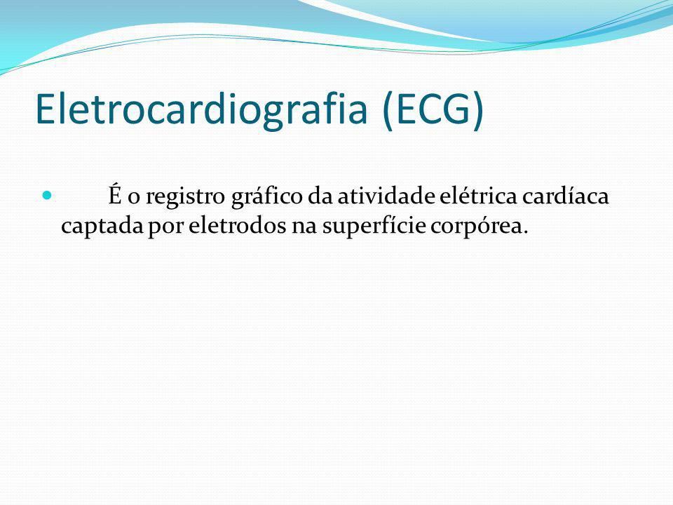 Eletrocardiografia (ECG)