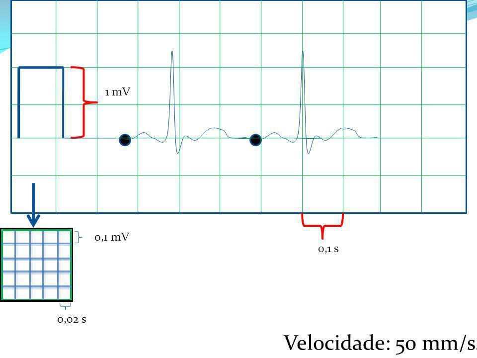 1 mV 0,1 mV 0,1 s 0,02 s Velocidade: 50 mm/s.