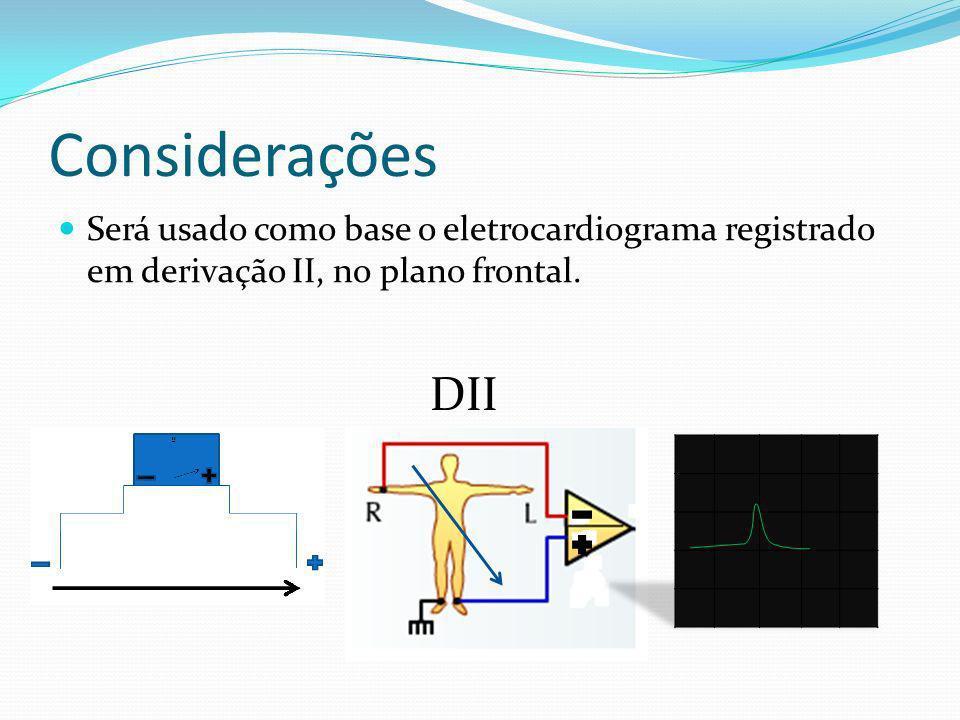 Considerações Será usado como base o eletrocardiograma registrado em derivação II, no plano frontal.
