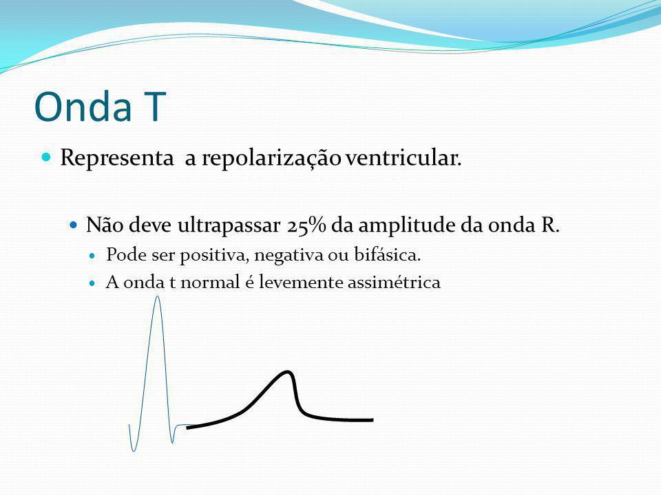 Onda T Representa a repolarização ventricular.