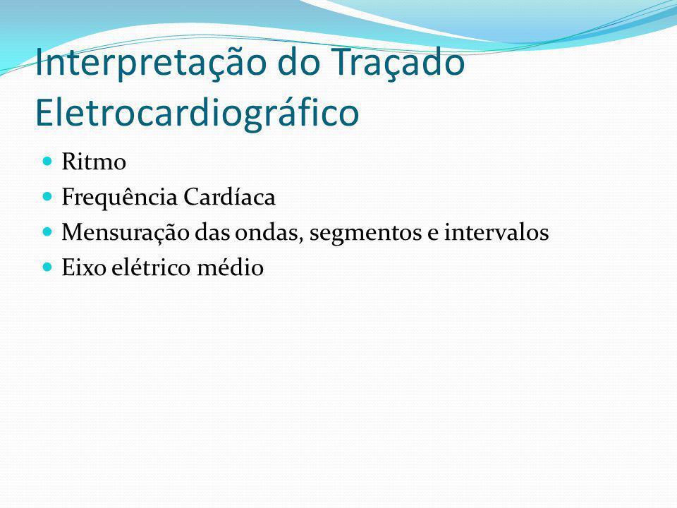 Interpretação do Traçado Eletrocardiográfico