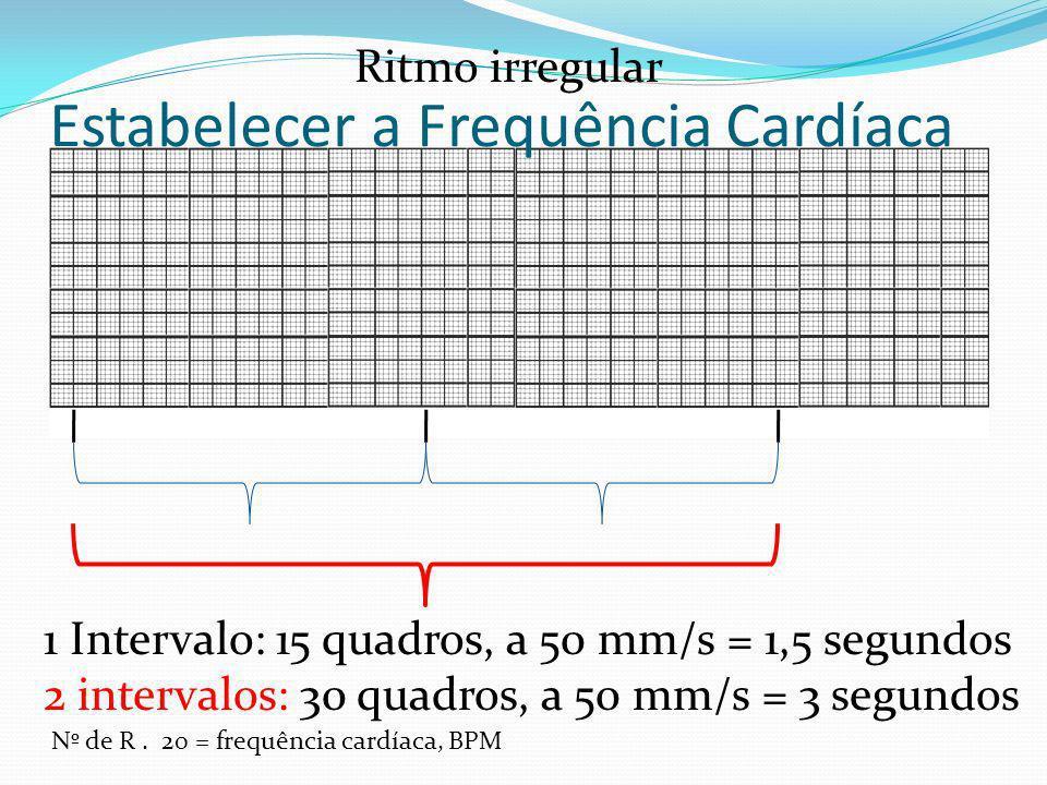 Estabelecer a Frequência Cardíaca