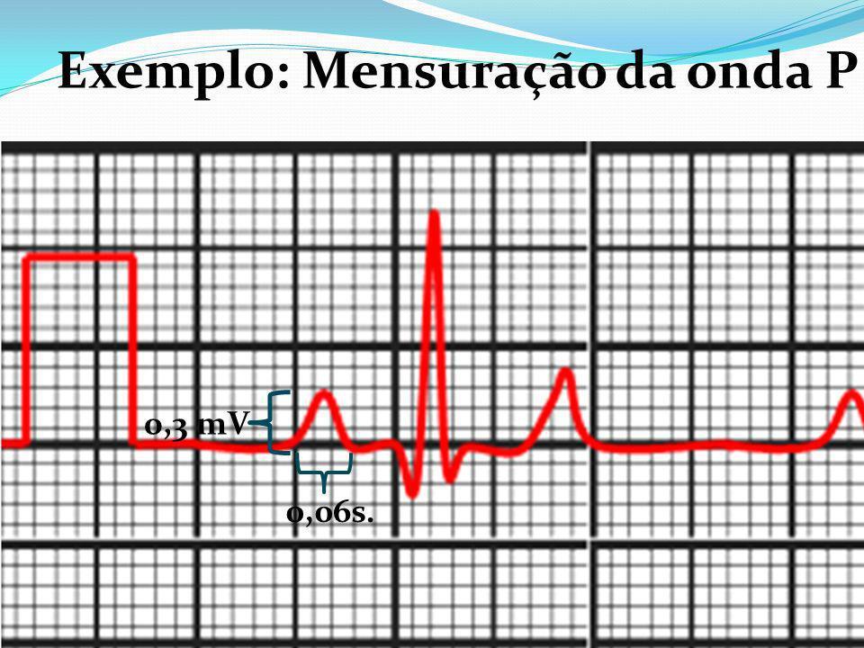 Exemplo: Mensuração da onda P
