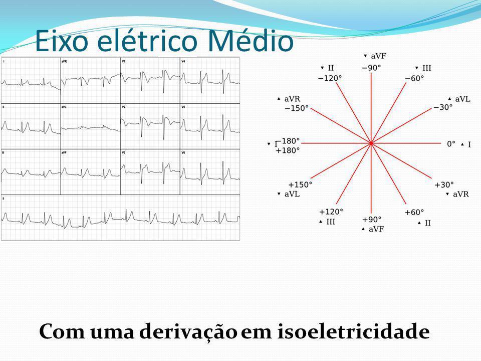 Eixo elétrico Médio Com uma derivação em isoeletricidade