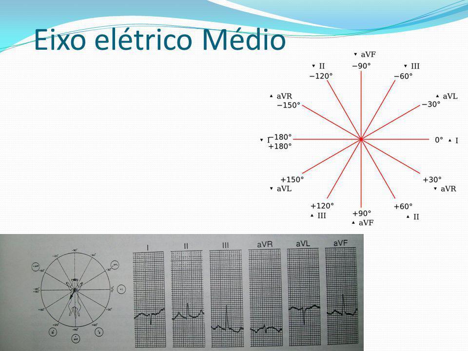 Eixo elétrico Médio