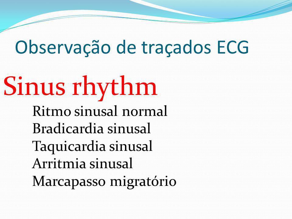 Observação de traçados ECG